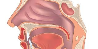 如何做好早期鼻咽癌篩查